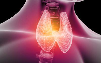 Fogyás, vagy elhízás? Hajhullás? A pajzsmirigygyulladás sokrétűsége