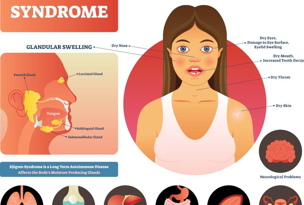 Szem- és szájszárazság! Lehetséges ok: Sjögren szindróma
